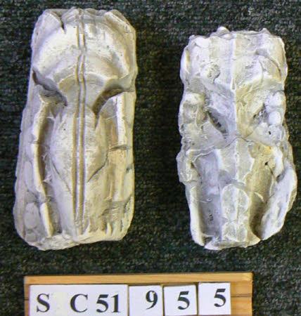 Plaster cast